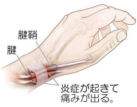 無料 腱鞘炎  に対する画像結果